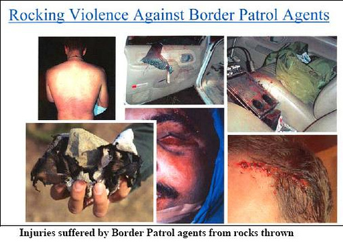 rocks thrown by illegal aliens cause serious injuries to Border Patrol agents.